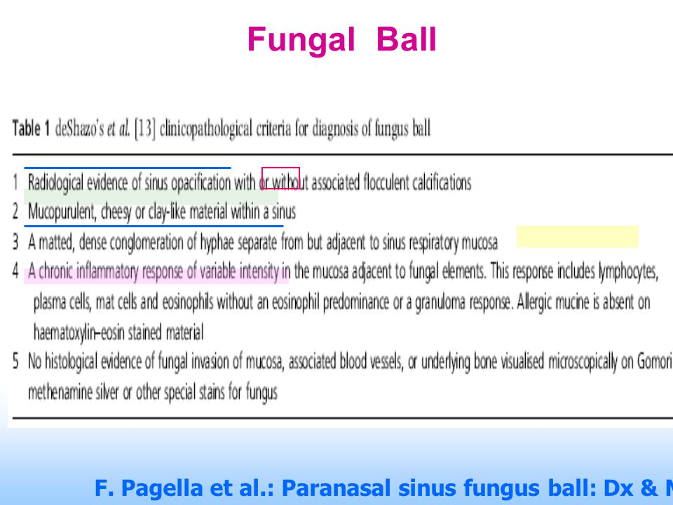 Fungal Ball F. Pagella et al.: Paranasal sinus fungus ball: Dx & Mx. Mycoses (2007), 50, 451–456.