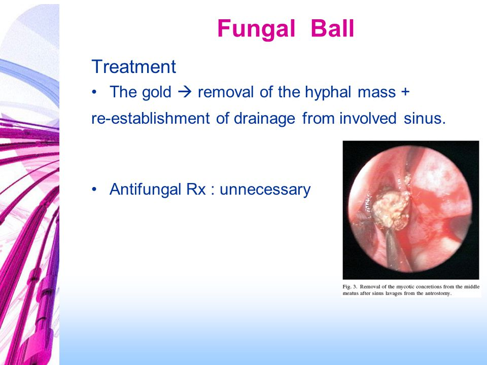 Fungal Ball Treatment The gold  removal of the hyphal mass +