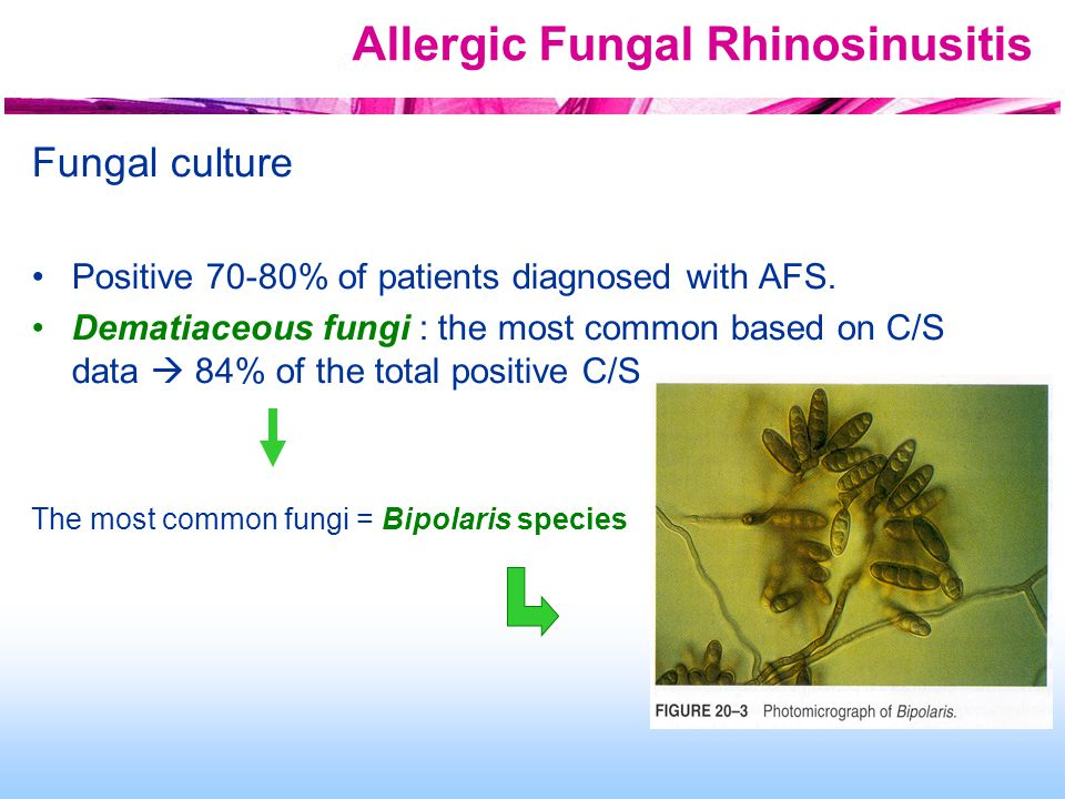 Allergic Fungal Rhinosinusitis