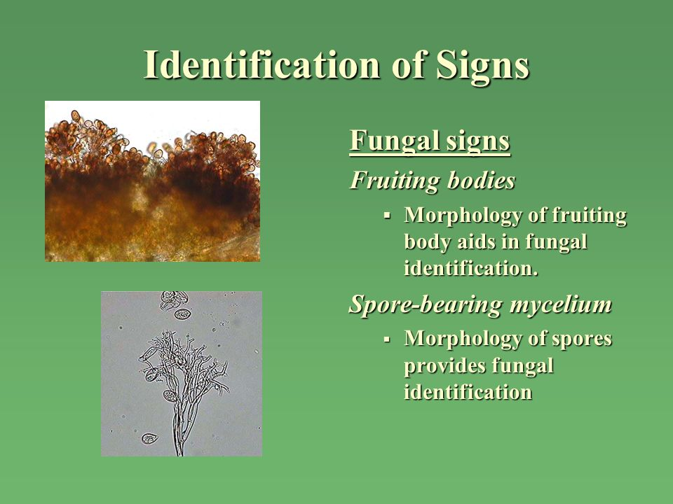 Identification of Signs