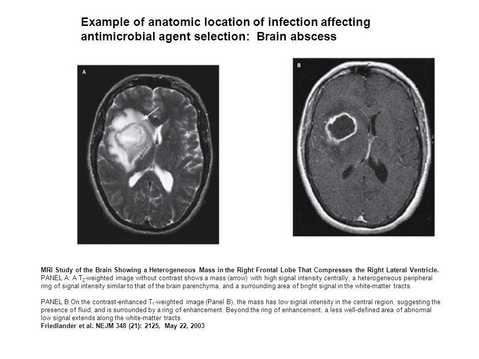 Example of anatomic location of infection affecting antimicrobial agent selection: Brain abscess