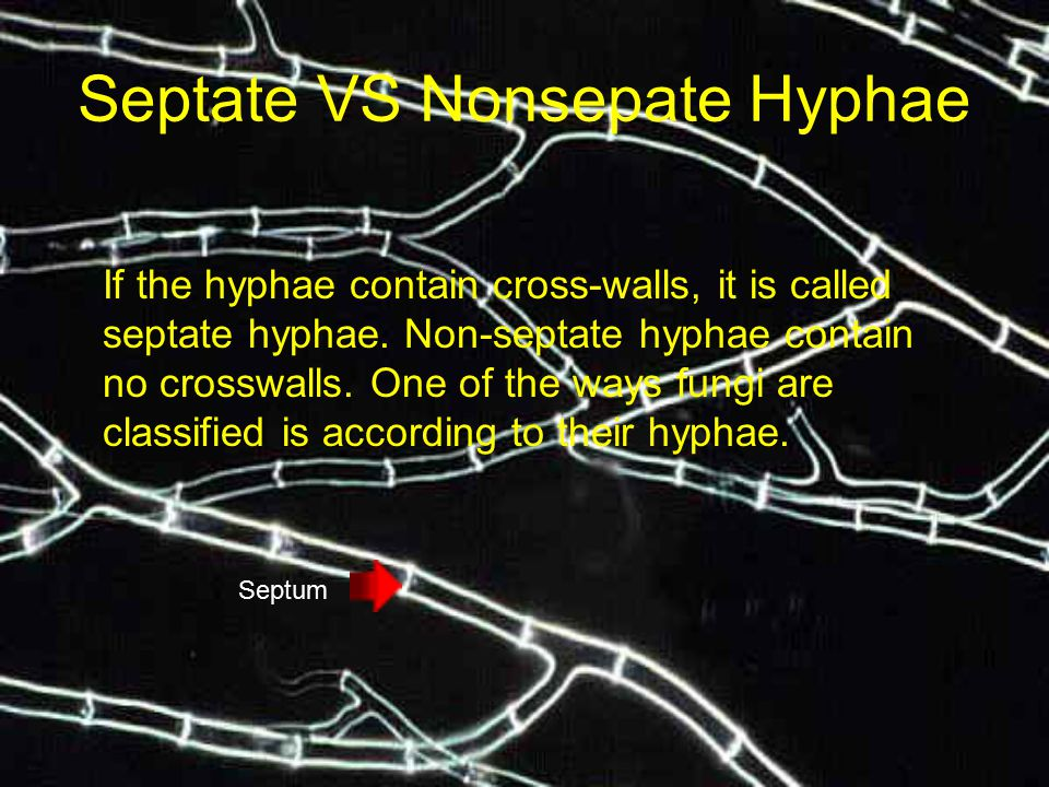 Septate VS Nonsepate Hyphae