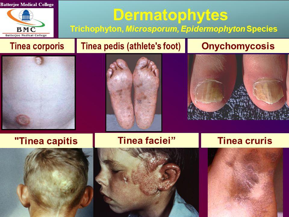 Dermatophytes Tinea corporis Tinea pedis (athlete s foot)