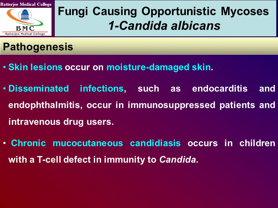 Fungi Causing Opportunistic Mycoses