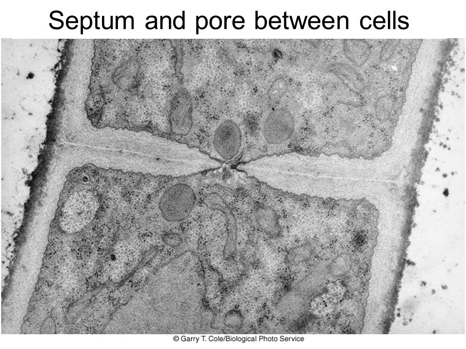 Septum and pore between cells