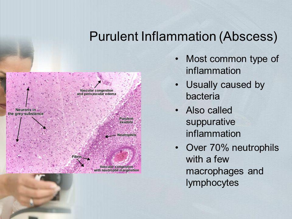 Purulent Inflammation (Abscess)