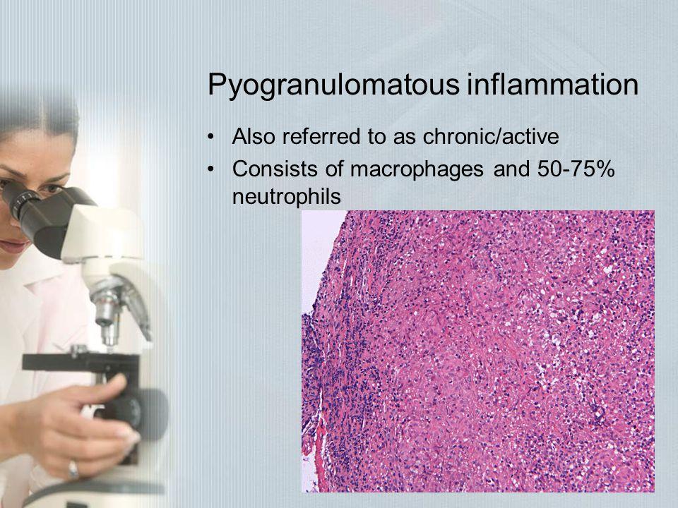 Pyogranulomatous inflammation