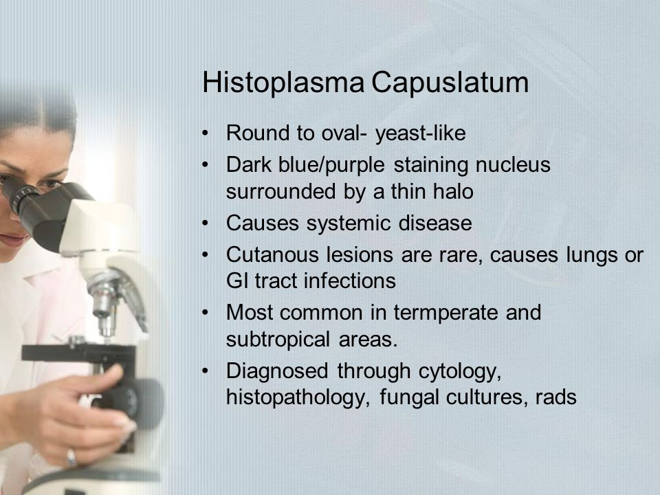 Histoplasma Capuslatum