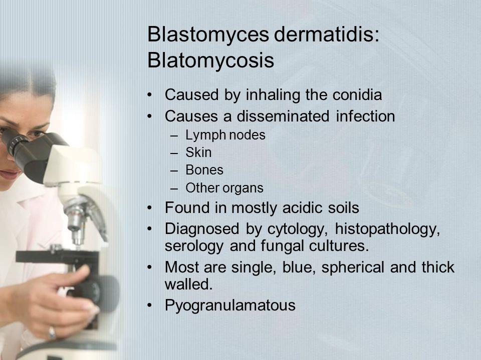 Blastomyces dermatidis: Blatomycosis