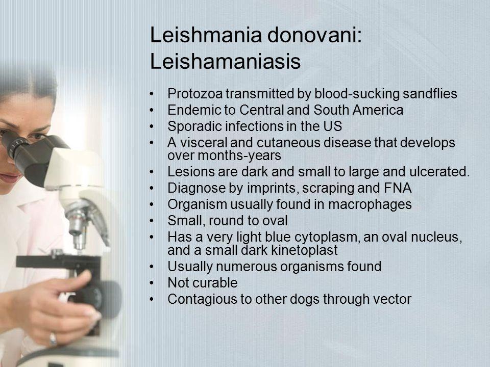 Leishmania donovani: Leishamaniasis