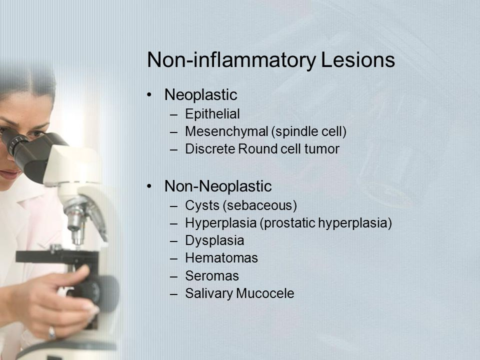 Non-inflammatory Lesions
