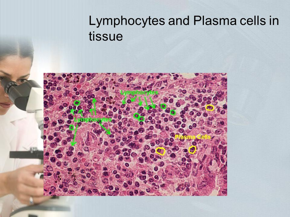 Lymphocytes and Plasma cells in tissue