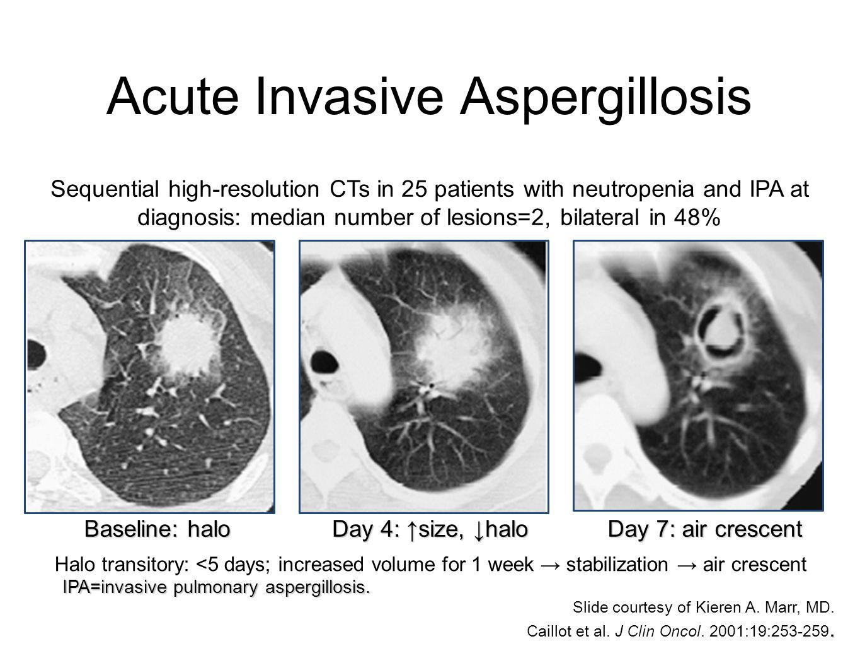 Acute Invasive Aspergillosis