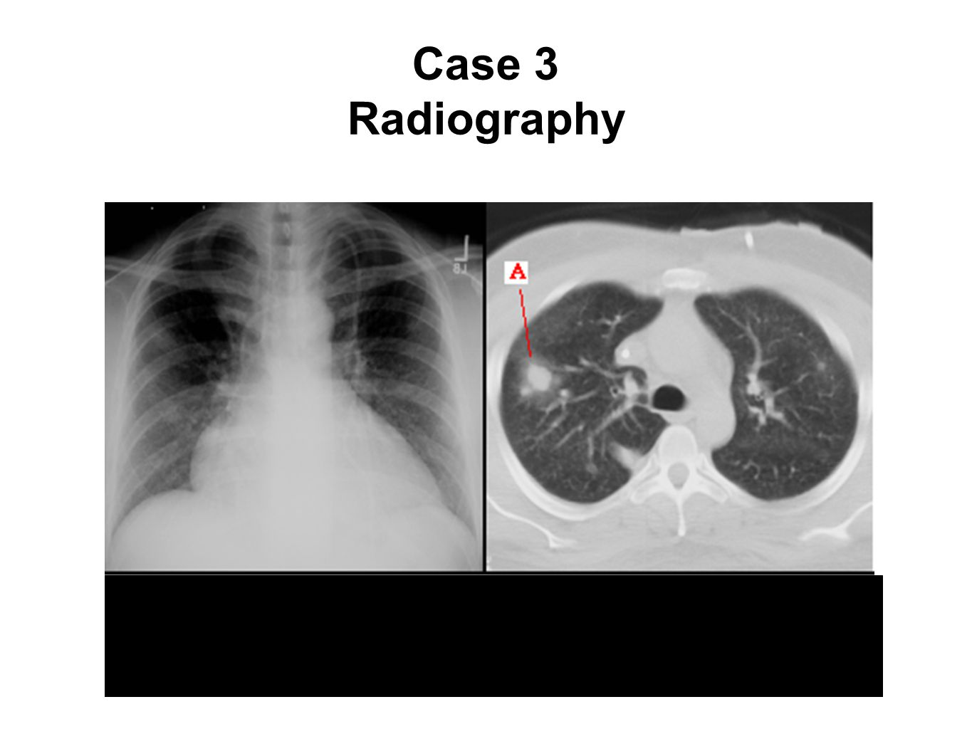Case 3 Radiography