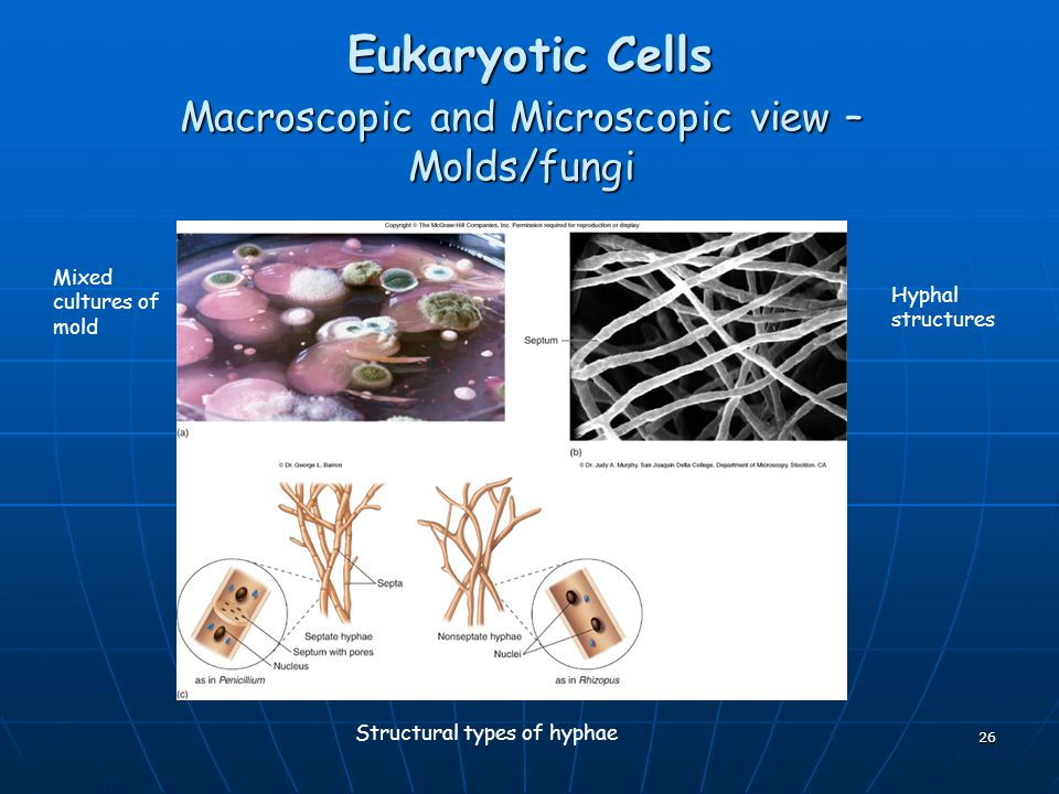 Macroscopic and Microscopic view – Molds/fungi