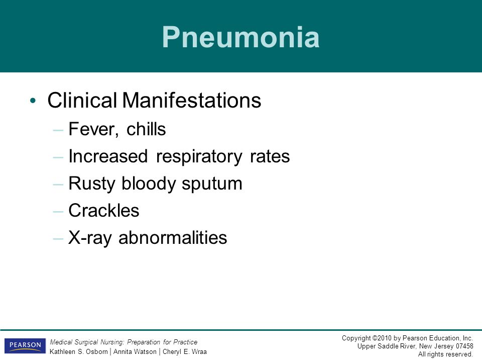 Pneumonia Clinical Manifestations Fever, chills