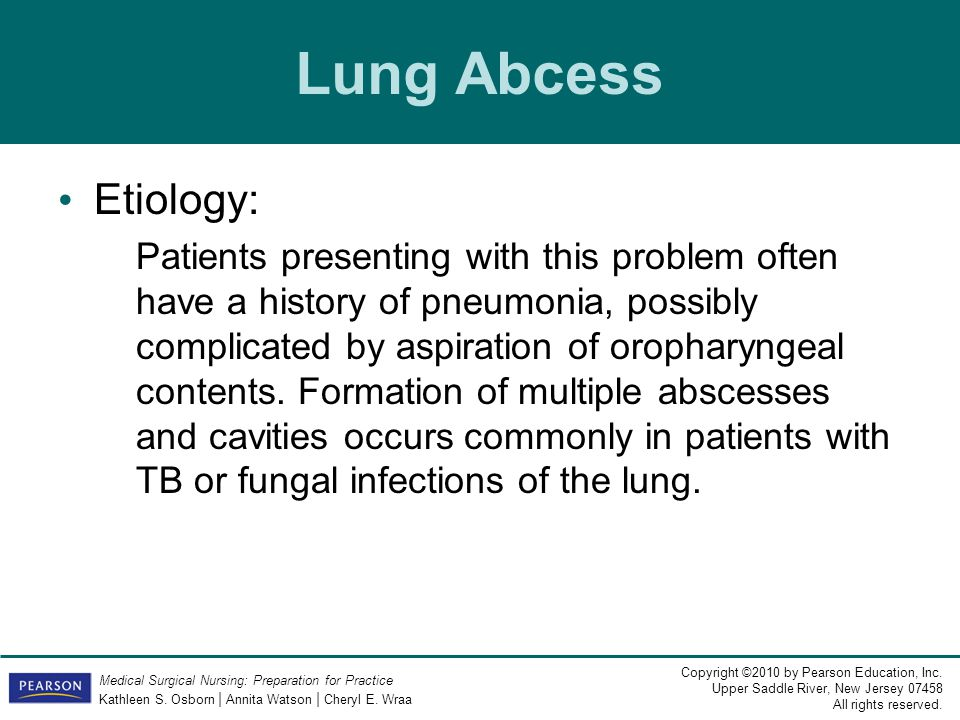 Lung Abcess Etiology: