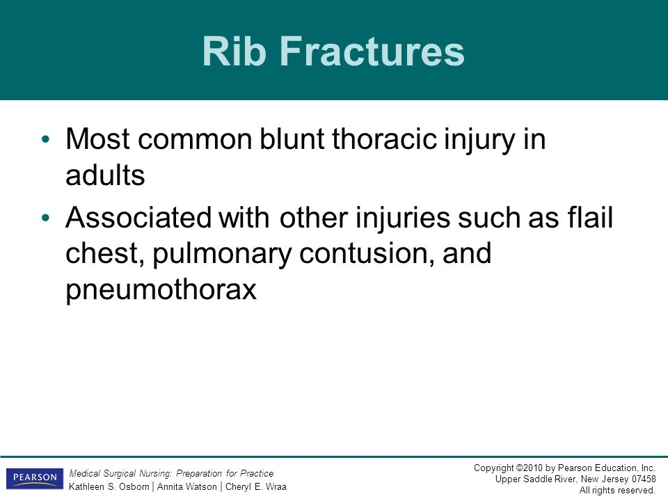 Rib Fractures Most common blunt thoracic injury in adults