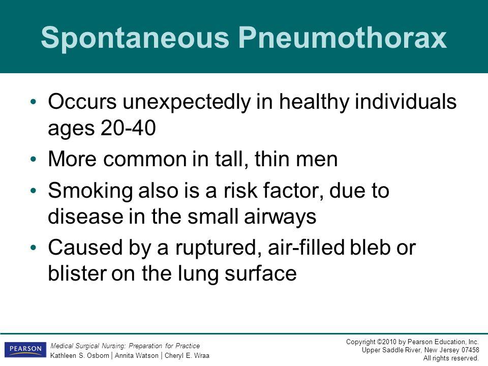 Spontaneous Pneumothorax