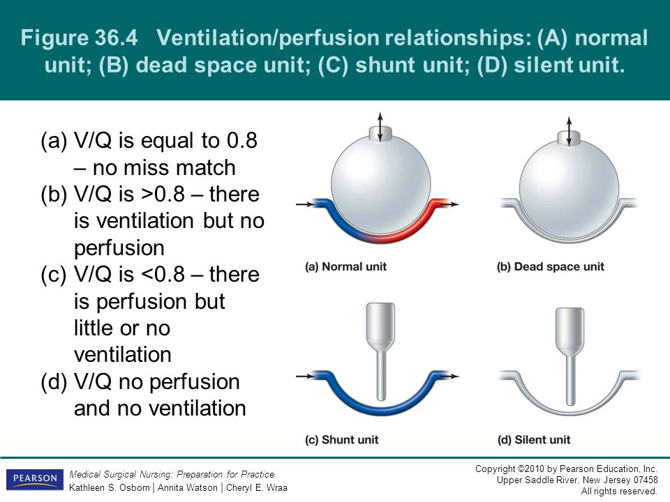 V/Q is equal to 0.8 – no miss match