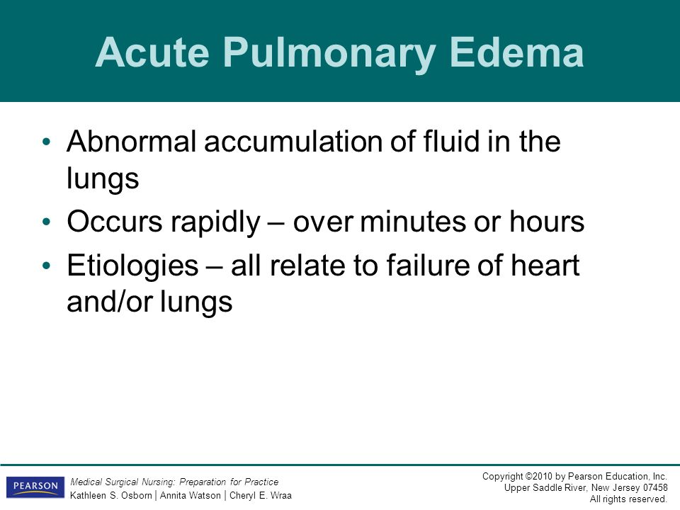 Acute Pulmonary Edema Abnormal accumulation of fluid in the lungs