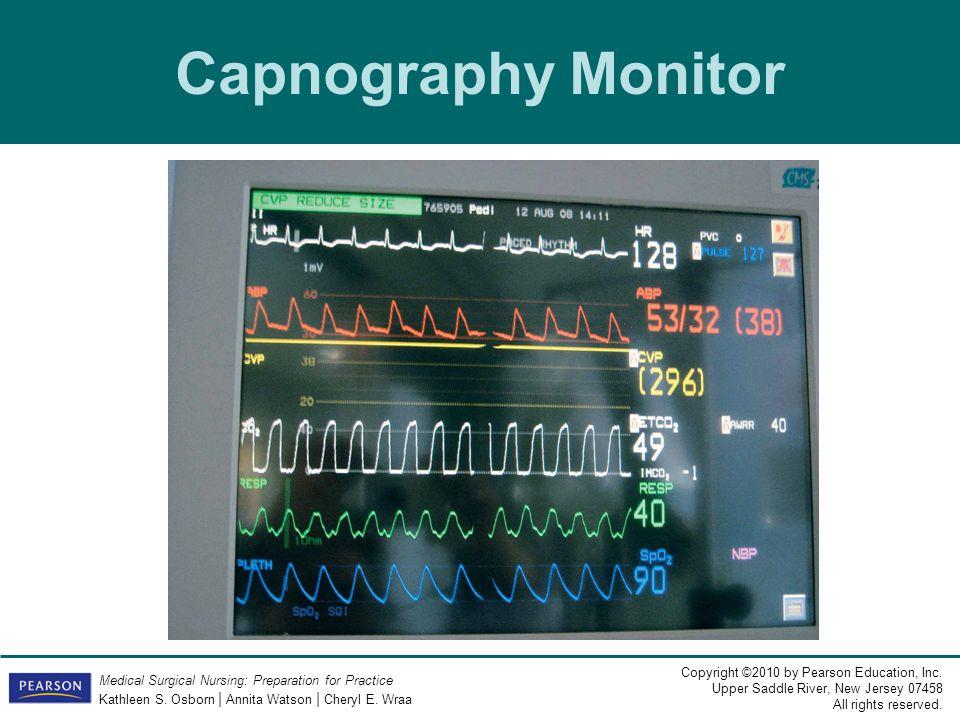 Capnography Monitor