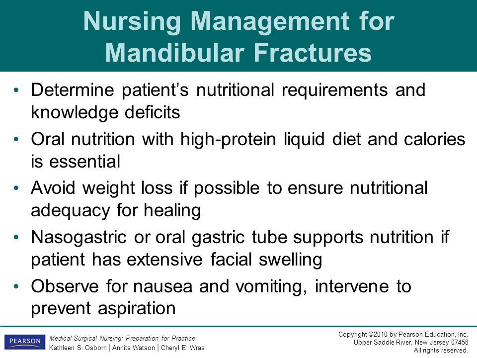 Nursing Management for Mandibular Fractures