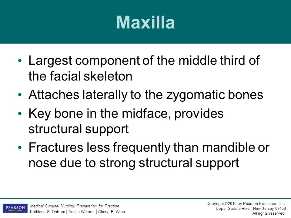 Maxilla Largest component of the middle third of the facial skeleton