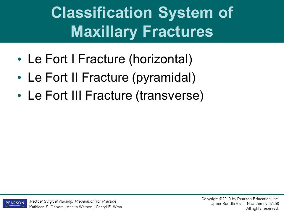 Classification System of Maxillary Fractures