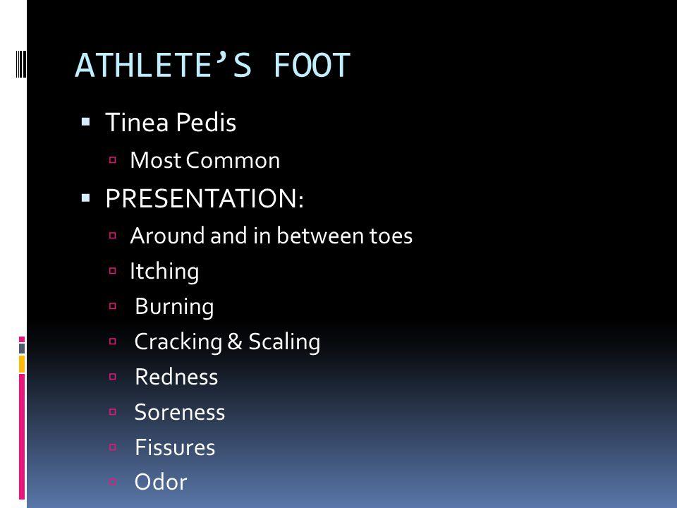 ATHLETE'S FOOT Tinea Pedis PRESENTATION: Most Common