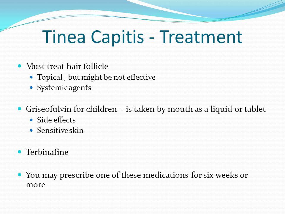 Tinea Capitis - Treatment