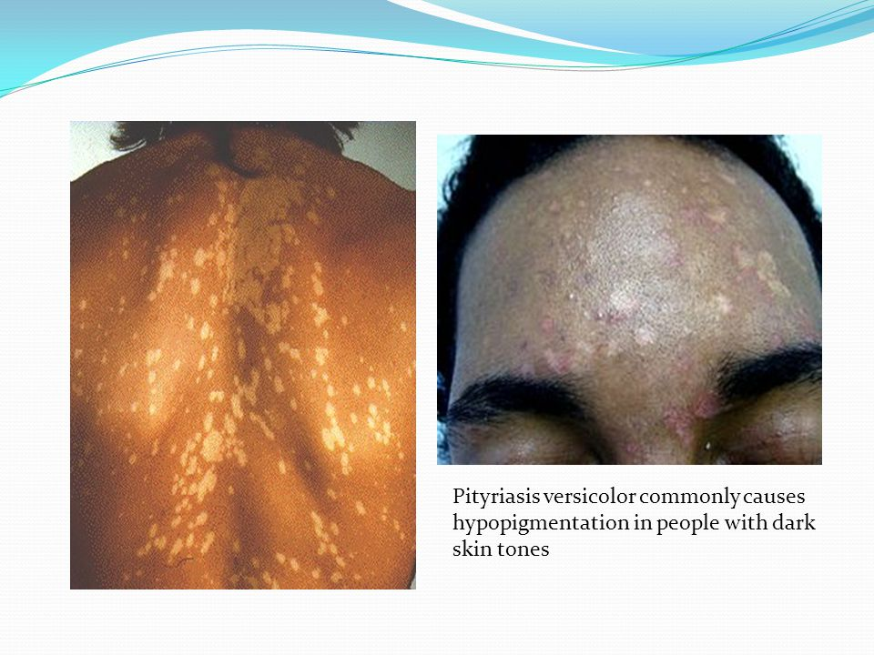 Pityriasis versicolor commonly causes hypopigmentation in people with dark skin tones