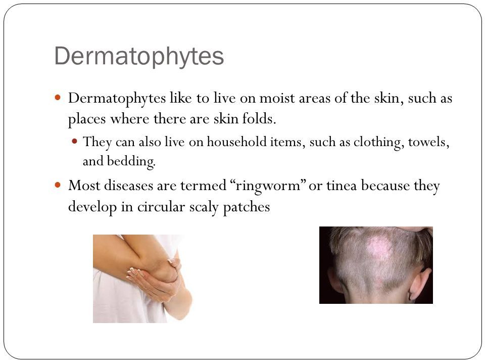 Dermatophytes Dermatophytes like to live on moist areas of the skin, such as places where there are skin folds.