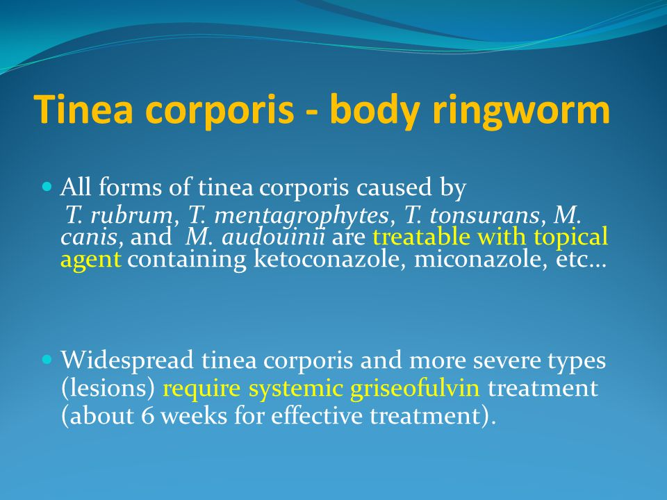 Tinea corporis - body ringworm