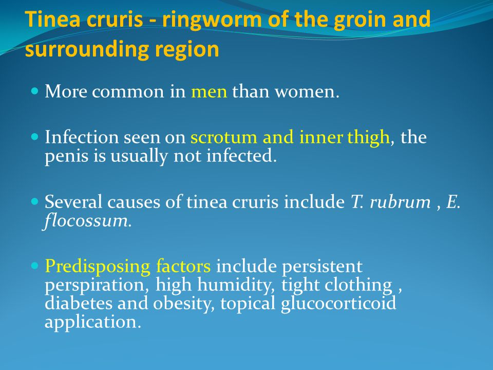 Tinea cruris - ringworm of the groin and surrounding region