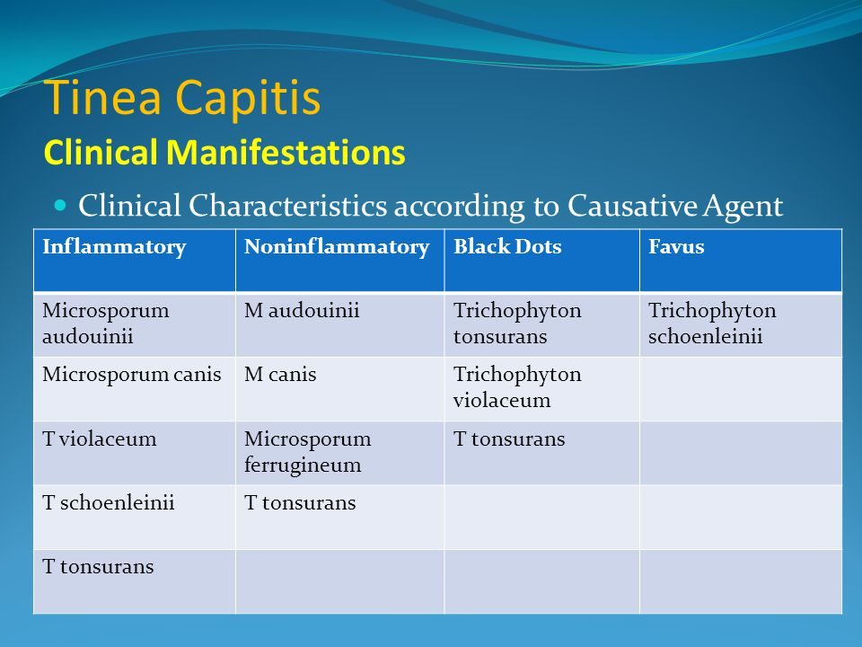 Tinea Capitis Clinical Manifestations