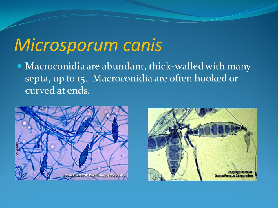 Microsporum canis Macroconidia are abundant, thick-walled with many septa, up to 15. Macroconidia are often hooked or curved at ends.