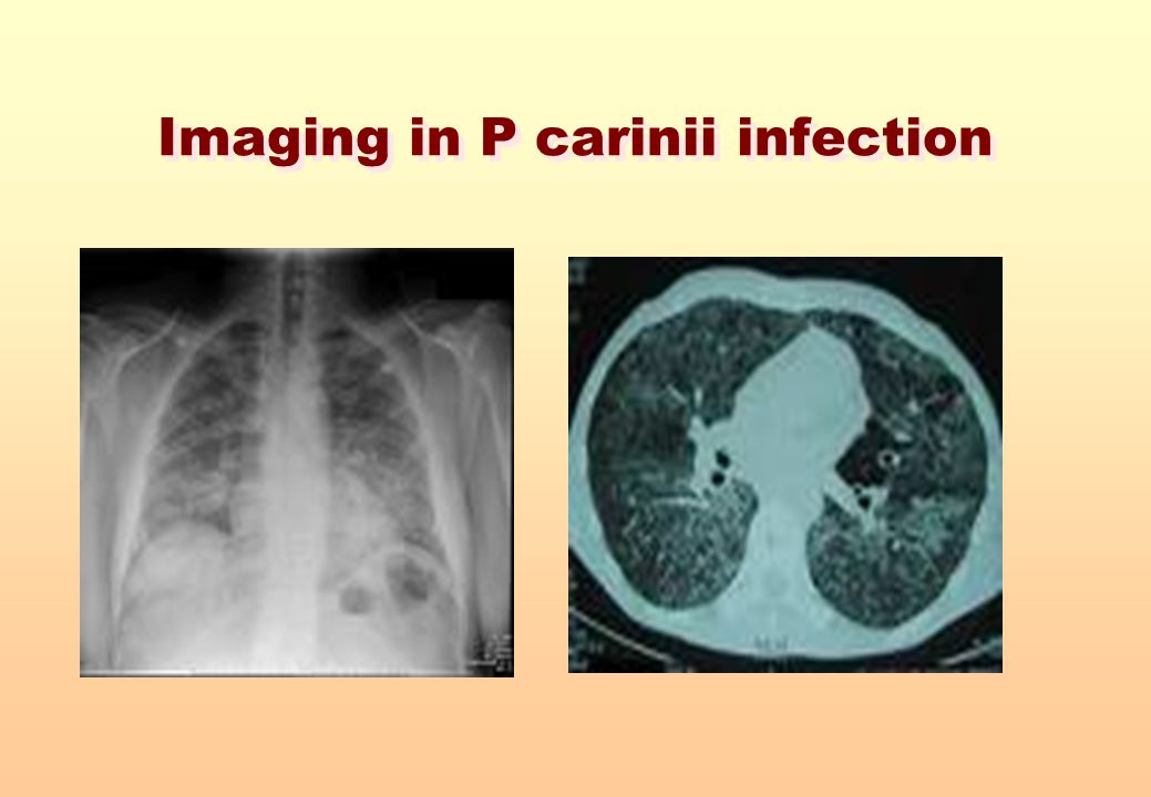 Imaging in P carinii infection