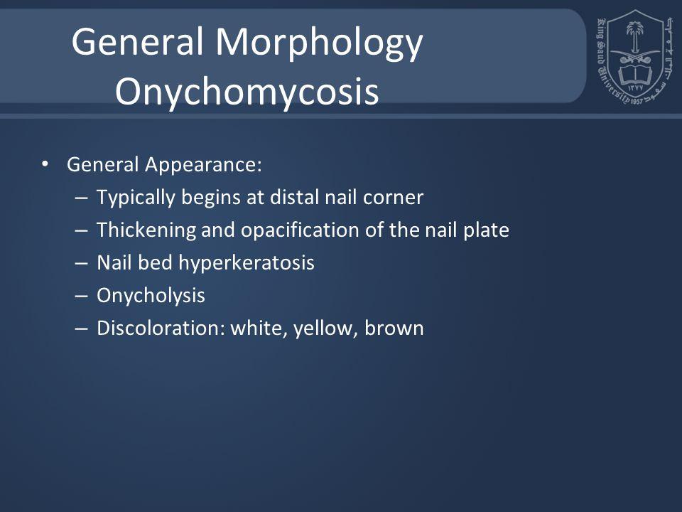 General Morphology Onychomycosis