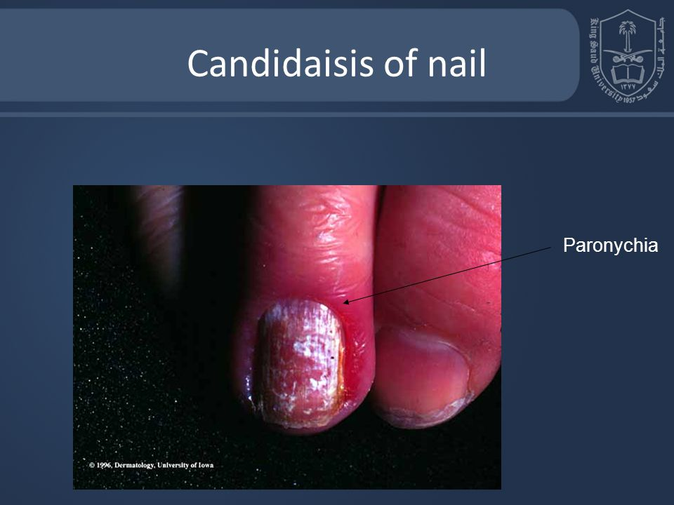 Candidaisis of nail Paronychia