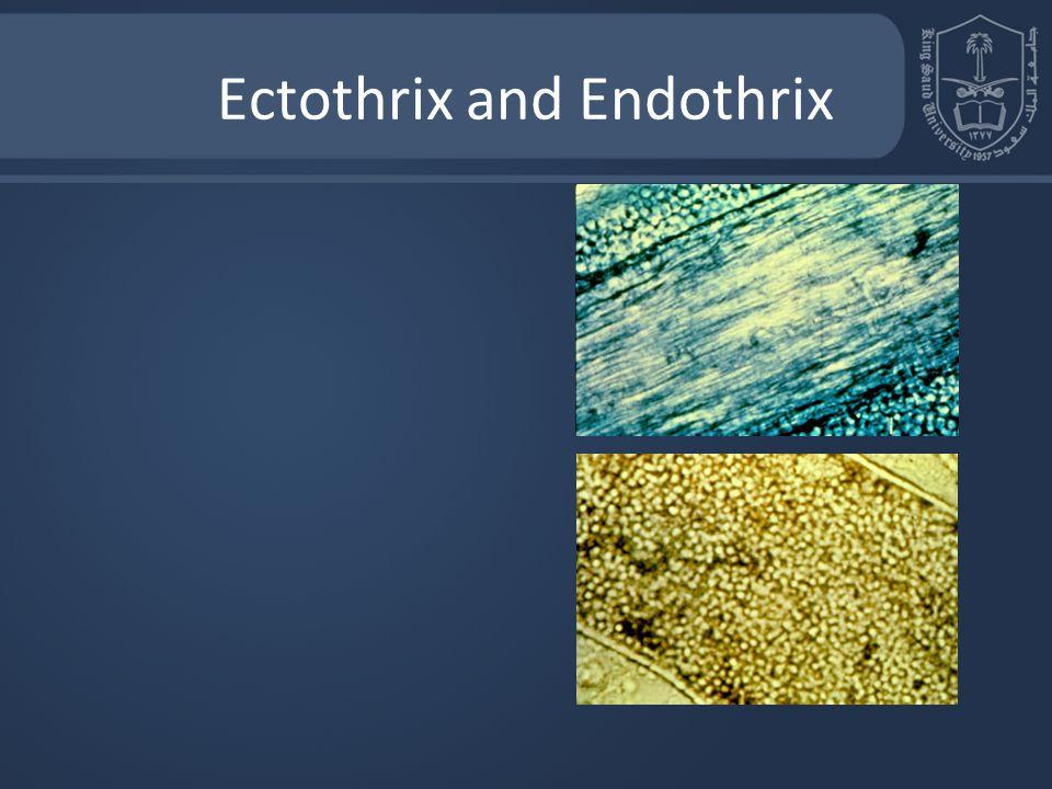 Ectothrix and Endothrix