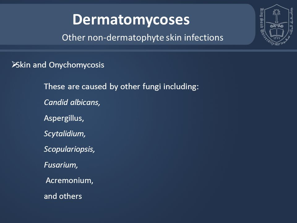 Other non-dermatophyte skin infections