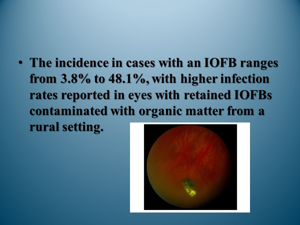 The incidence in cases with an IOFB ranges from 3. 8% to 48