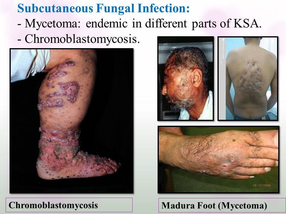 Subcutaneous Fungal Infection: - Mycetoma: endemic in different parts of KSA. - Chromoblastomycosis.