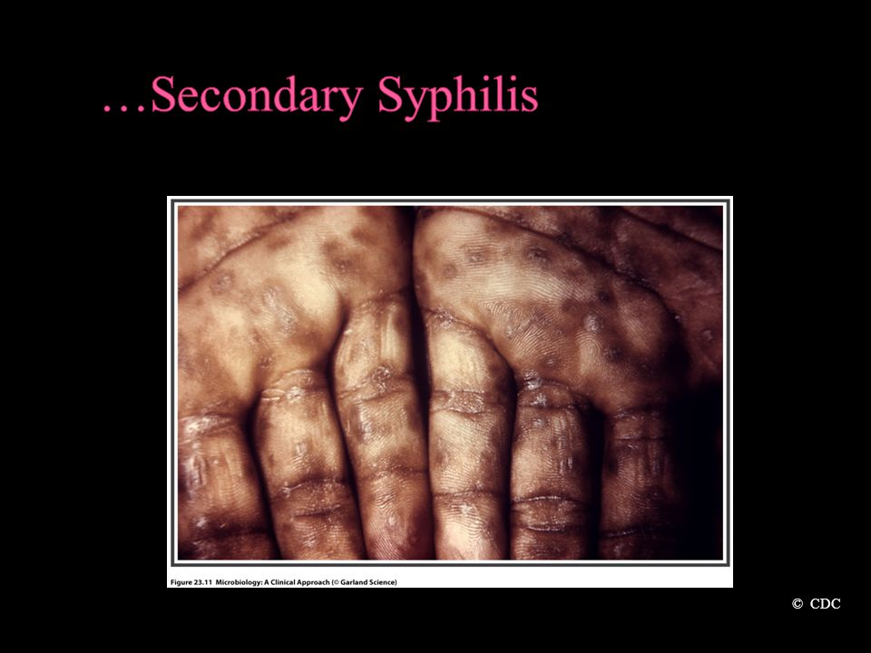 …Secondary Syphilis © CDC