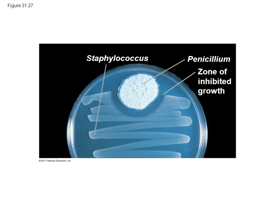 Zone of inhibited growth