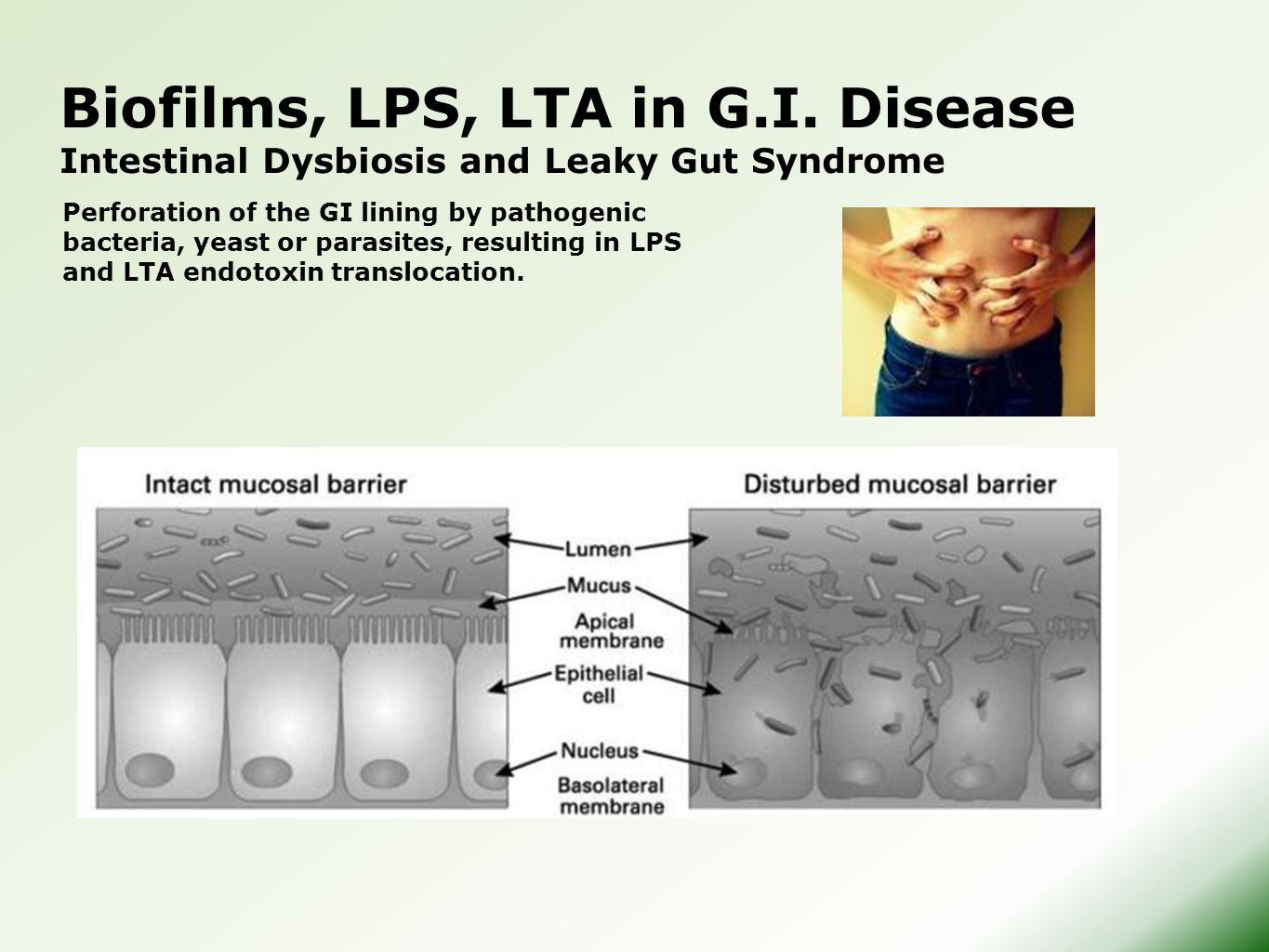 Biofilms, LPS, LTA in G.I. Disease Intestinal Dysbiosis and Leaky Gut Syndrome