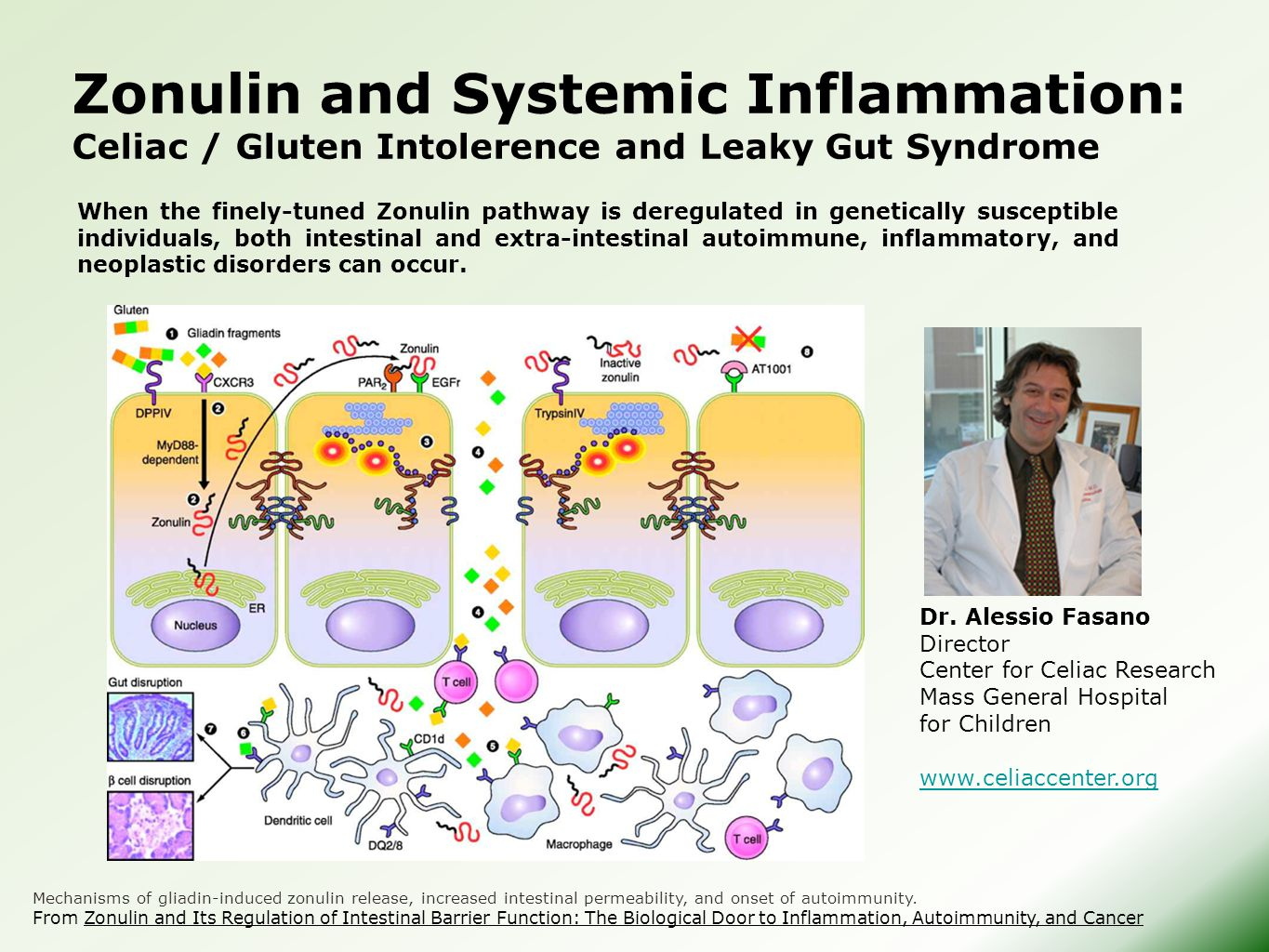 Zonulin and Systemic Inflammation: Celiac / Gluten Intolerence and Leaky Gut Syndrome