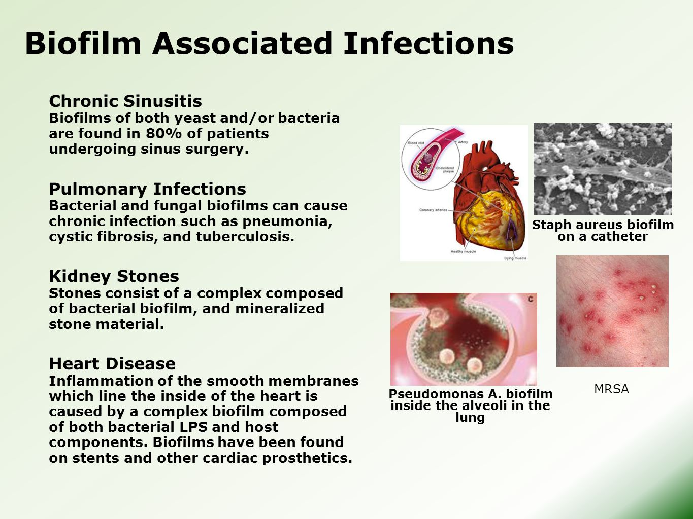Biofilm Associated Infections