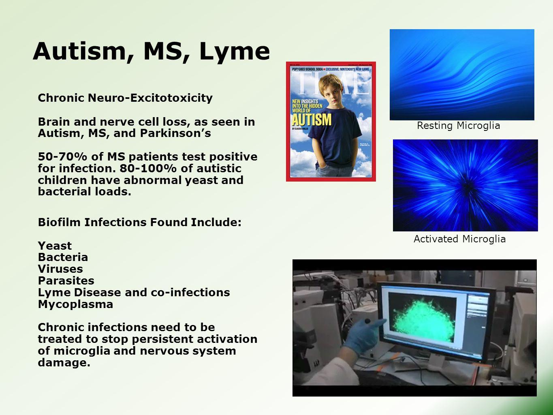 Autism, MS, Lyme